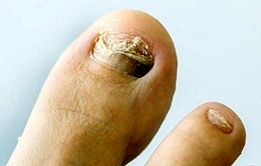 Why fungi appear on the feet and what symptoms produce - diseases