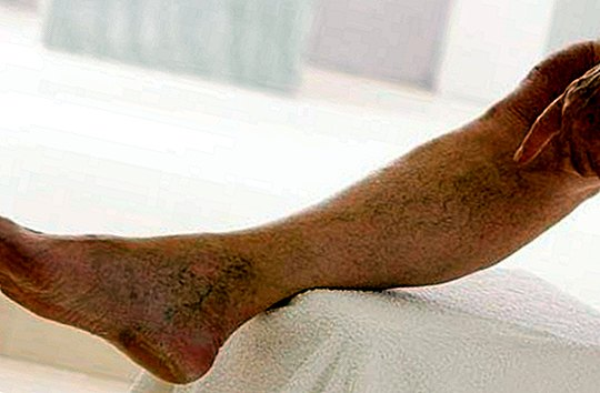 What is phlebitis and thrombophlebitis: symptoms, causes and treatment - diseases