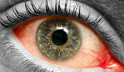 Why does retinal detachment occur? - diseases
