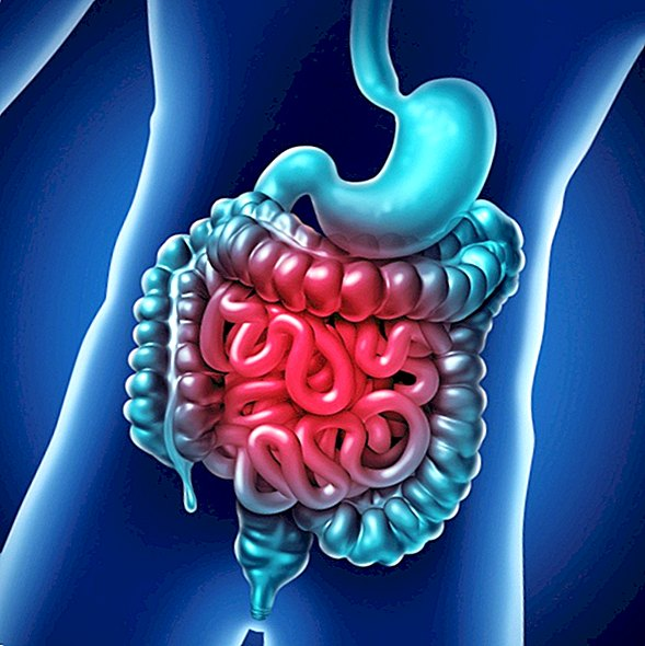diseases - Irritable bowel syndrome: symptoms, treatment and diagnosis