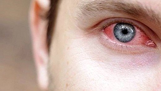 Conjunctivitis: What is it? Symptoms, causes and treatment - diseases
