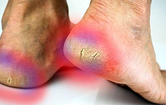 How to soften naturally cracked heels with these remedies - Natural medicine