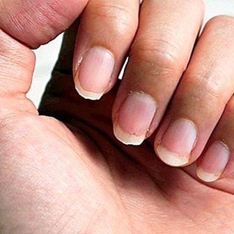 Causes of weak nails and treatments to strengthen them