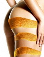Types of cellulite
