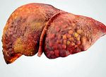 Liver cirrhosis: what it is, causes, symptoms, types and treatment - diseases