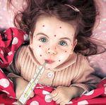 Demam Scarlet: gejala, sebab dan rawatan